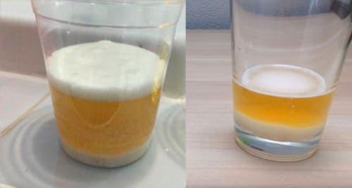 Тест на беременность дома с содой thumbnail