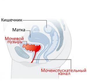 Цистит при беременности: как и чем лечить, симптомы