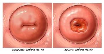 Секс при эрозий матки