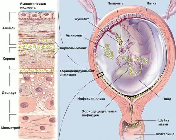 Хориоамнионит при беременности что это