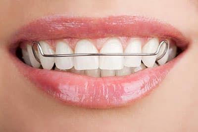 Как выровнять зубы при помощи пластинок