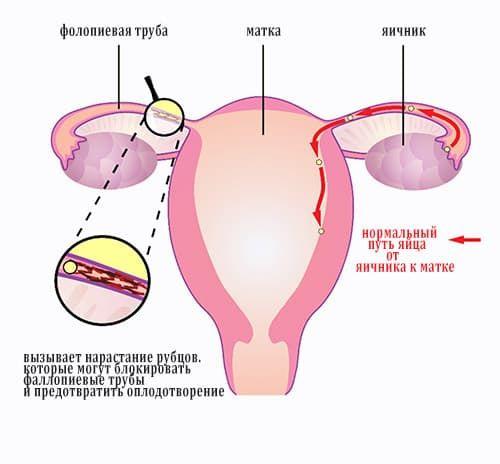 Лечение хламидии при беременности