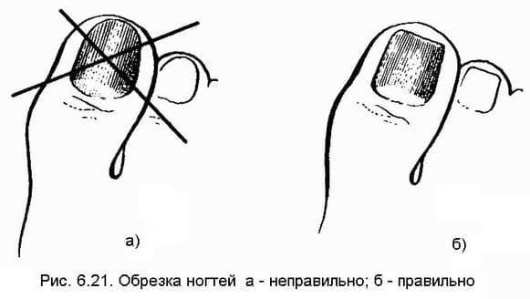 Как правильно обрезать ноготь на ногах фото