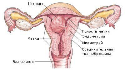 Плацентарный полип после кс