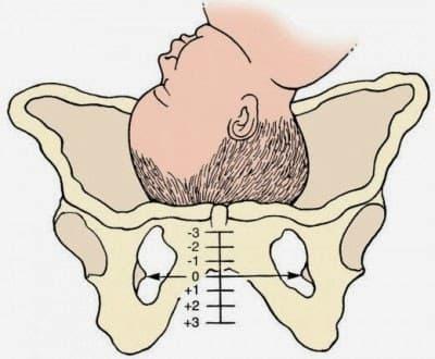 Во время беременности болит лобок