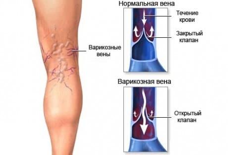 Диагностика и лечение венозных тромбозов