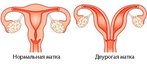 двурогая матка и беременность фото