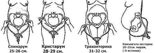 нормы размеров таза при беременности