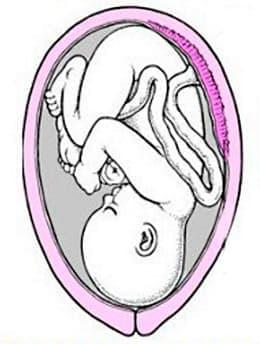 Положение плода при беременности 37