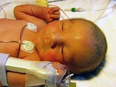 Патологическая желтуха у новорожденного