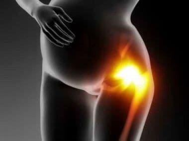 Болят тазовые кости при беременности