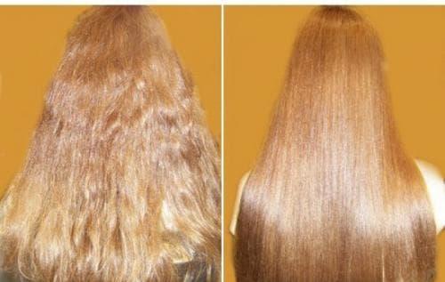 Где купить жидкие витамины для волос